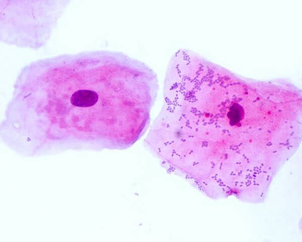 Cheek cells are typical animal cells