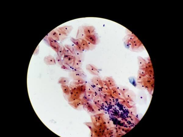 Cheek cells form the basal mucous membrane in the mouth