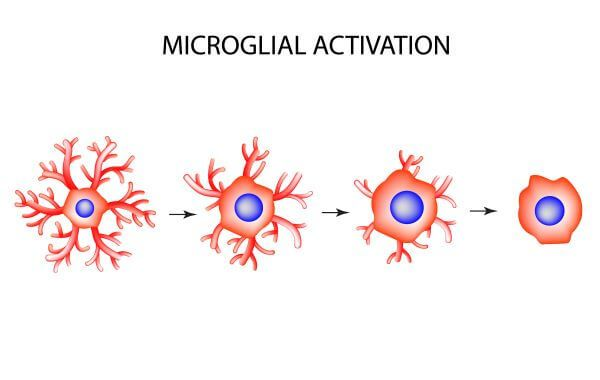 Microglia withdraw their branches when activated