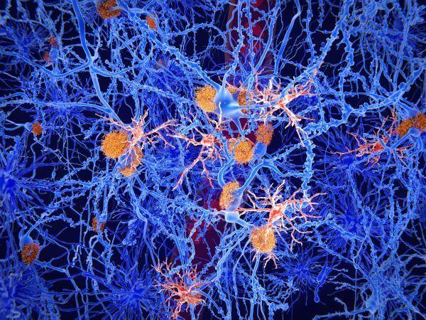Microglia are the most important immune cells in the CNS